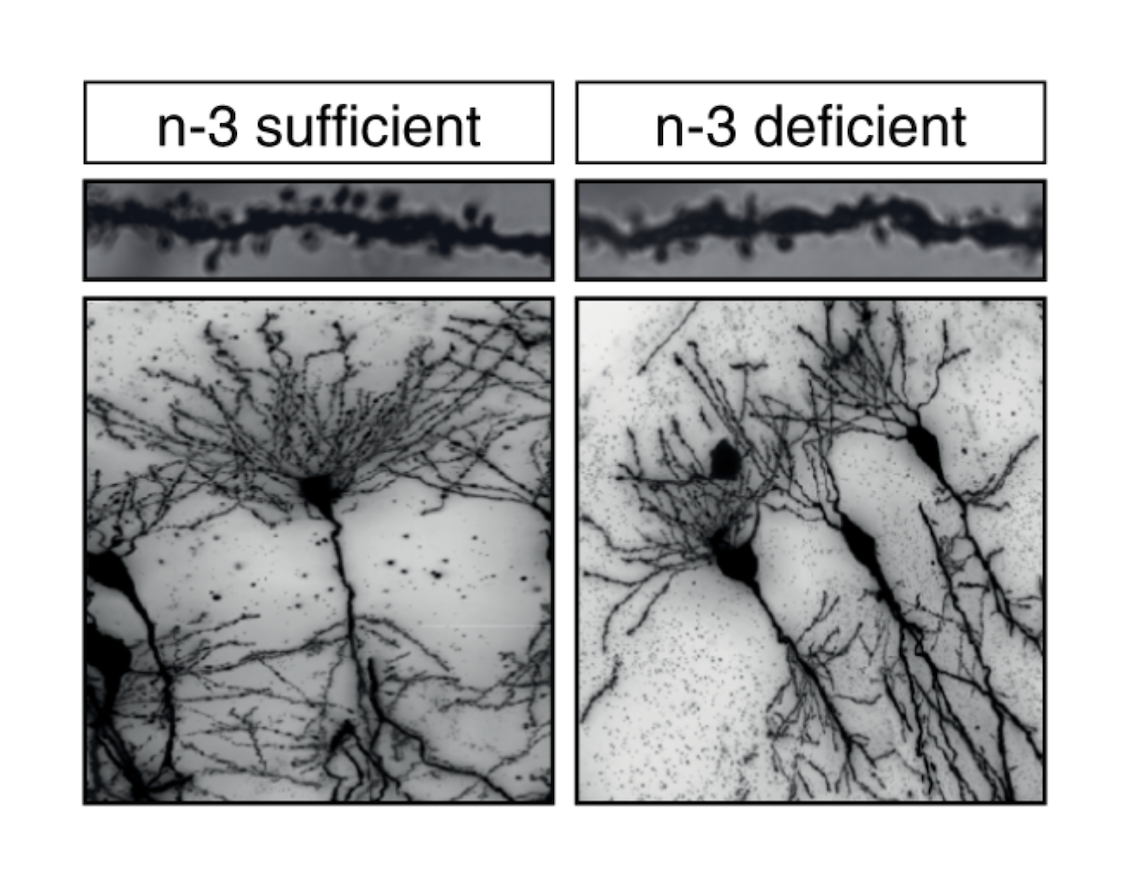 Microscopic images of dendrites and the pruning of hippocampal neurons from Omega 3 sufficient (left) and Omega 3 deficient (right) mice, courtesy of Nature Communications